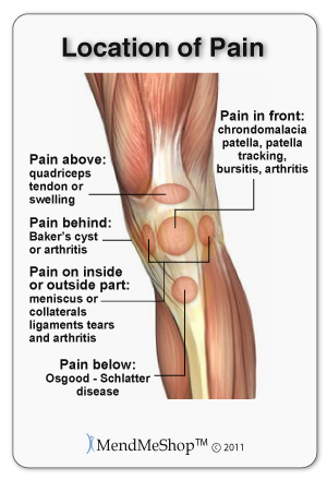 Knee strain or sprain, which is affected