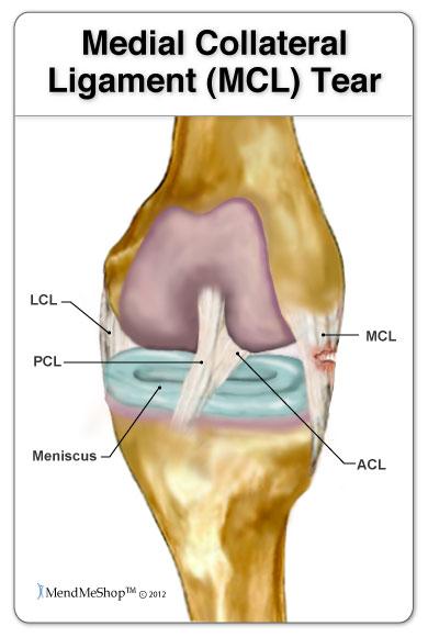 Illustration MCL tear anatomy knee
