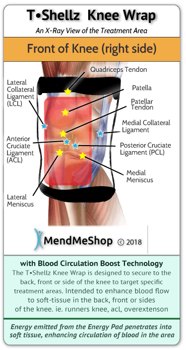 MendMeShop KneeWrap speeds the healing of PCL injuries and tears