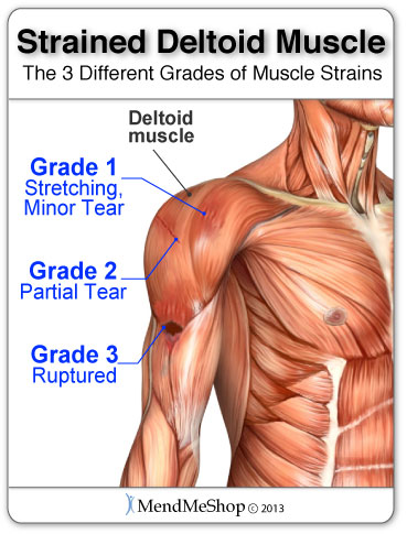 deltoid muscle strain causes shoulder pain